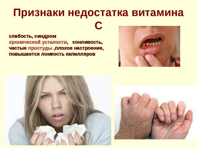 Признаки недостатка витамина С слабость, синдром хронической усталости, сонливость, частые простуды ,плохое настроение, повышается ломкость капилляров