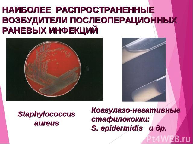 НАИБОЛЕЕ РАСПРОСТРАНЕННЫЕ ВОЗБУДИТЕЛИ ПОСЛЕОПЕРАЦИОННЫХ РАНЕВЫХ ИНФЕКЦИЙ Staphylococcus aureus Коагулазо-негативные стафилококки: S. epidermidis и др.