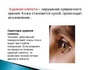 Куриная слепота – нарушение сумеречного зрения. Кожа становится сухой, происходи