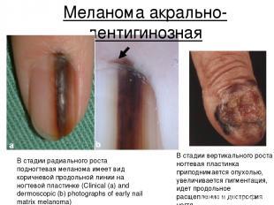 Меланома акрально-лентигинозная В стадии радиального роста подногтевая меланома