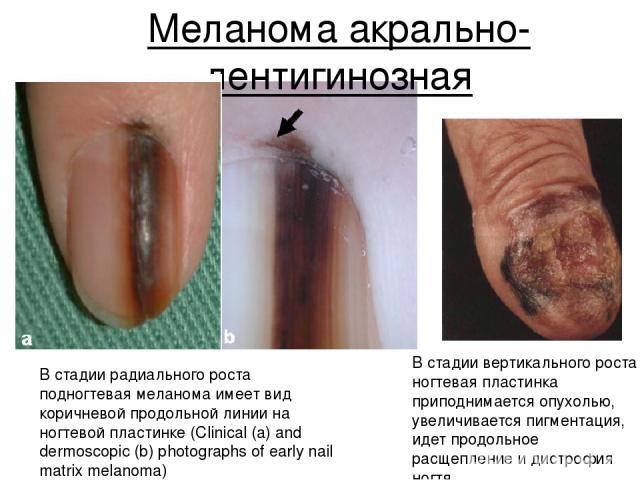 Меланома акрально-лентигинозная В стадии радиального роста подногтевая меланома имеет вид коричневой продольной линии на ногтевой пластинке (Clinical (a) and dermoscopic (b) photographs of early nail matrix melanoma) В стадии вертикального роста ног…