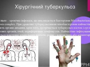 Хірургічний туберкульоз Туберкульоз– хронічна інфекція, що викликається бактері