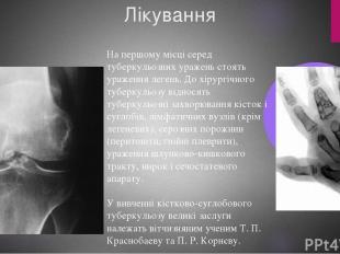 Лікування На першому місці серед туберкульозних уражень стоять ураження легень.