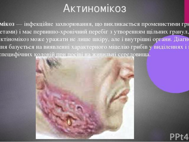 Актиномікоз Актіномікоз— інфекційне захворювання, що викликається променистими грибами (актиноміцетами) і має первинно-хронічний перебіг з утворенням щільних гранул, свищів і абсцесів. Актіномікоз може уражати не лише шкіру, але і внутрішні органи.…