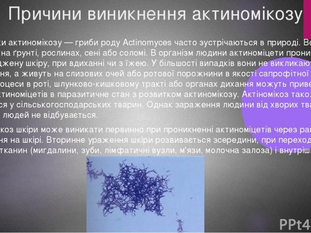 Причини виникнення актиномікозу Збудники актиномікозу — гриби роду Actinomyces часто зустрічаються в природі. Вони можуть перебувати на ґрунті, рослинах, сені або соломі. В організм людини актиноміцети проникають через ушкоджену шкіру, при вдиханні …