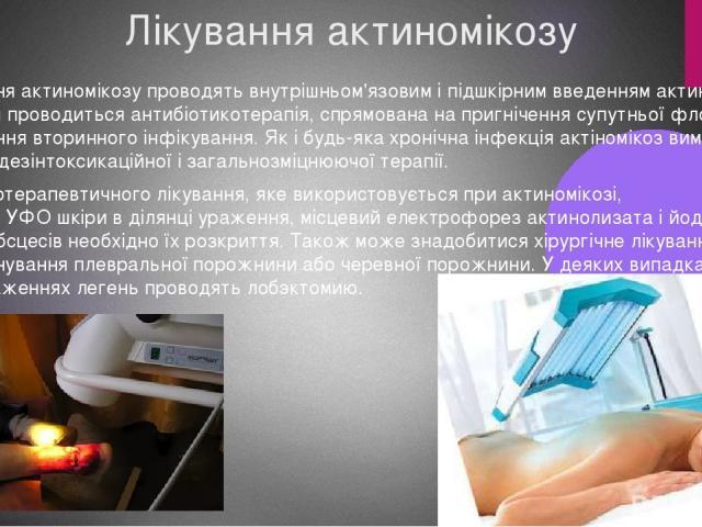 Лікування актиномікозу Лікування актиномікозу проводять внутрішньом'язовим і підшкірним введенням актинолизата. Разом з цим проводиться антибіотикотерапія, спрямована на пригнічення супутньої флори і попередження вторинного інфікування. Як і будь-як…