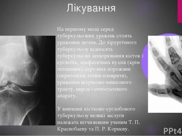 Лікування На першому місці серед туберкульозних уражень стоять ураження легень. До хірургічного туберкульозу відносять туберкульозні захворювання кісток і суглобів, лімфатичних вузлів (крім легеневих), серозних порожнин (перитоніти, гнійні плеврити)…