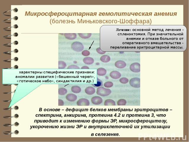 Микросфероцитарная гемолитическая анемия (болезнь Миньковского-Шоффара)