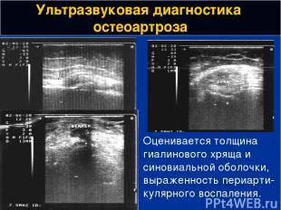 Ультразвуковая диагностика остеоартроза Оценивается толщина гиалинового хряща и