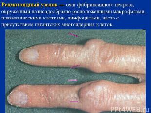 Ревматоидный узелок — очаг фибриноидного некроза, окружённый палисадообразно рас