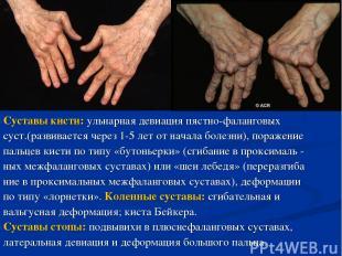 Суставы кисти: ульнарная девиация пястно-фаланговых суст.(развивается через 1-5