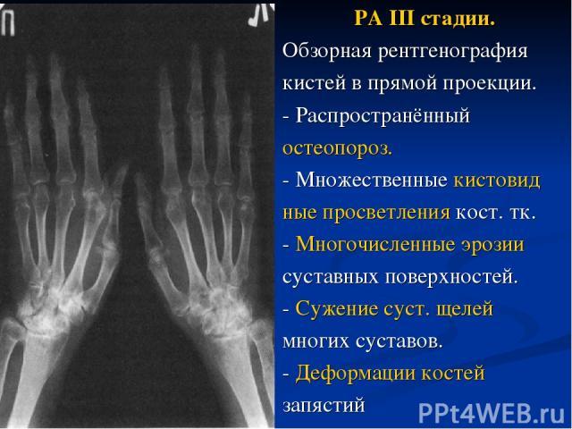 РА III стадии. Обзорная рентгенография кистей в прямой проекции. - Распространённый остеопороз. - Множественные кистовид ные просветления кост. тк. - Многочисленные эрозии суставных поверхностей. - Сужение суст. щелей многих суставов. - Деформации к…