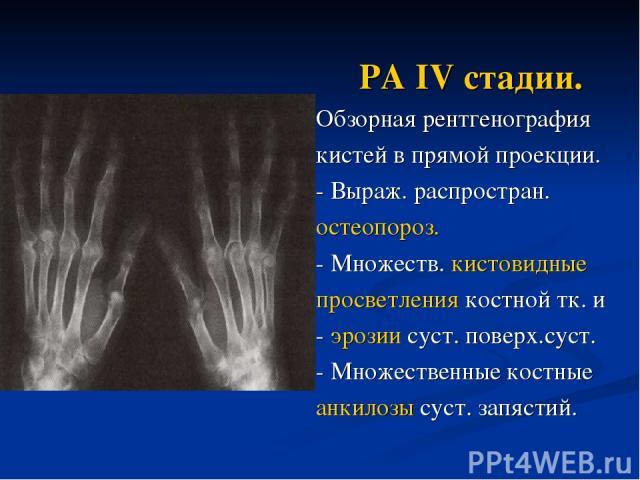 РА IV стадии. Обзорная рентгенография кистей в прямой проекции. - Выраж. распростран. остеопороз. - Множеств. кистовидные просветления костной тк. и - эрозии суст. поверх.суст. - Множественные костные анкилозы суст. запястий.