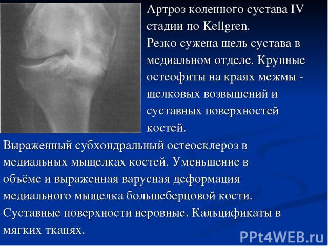 Выраженный субхондральный остеосклероз в медиальных мыщелках костей. Уменьшение в объёме и выраженная варусная деформация медиального мыщелка большеберцовой кости. Суставные поверхности неровные. Кальцификаты в мягких тканях. Артроз коленного сустав…