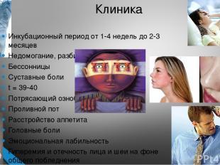 Клиника Инкубационный период от 1-4 недель до 2-3 месяцев Недомогание, разбитост
