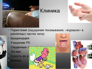 Клиника Парестезия (ощущение показывания, «мурашек» в различных частях тела) Бра