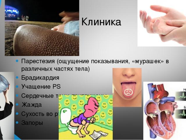 Клиника Парестезия (ощущение показывания, «мурашек» в различных частях тела) Брадикардия Учащение PS Сердечные тоны приглушены Жажда Сухость во рту Запоры