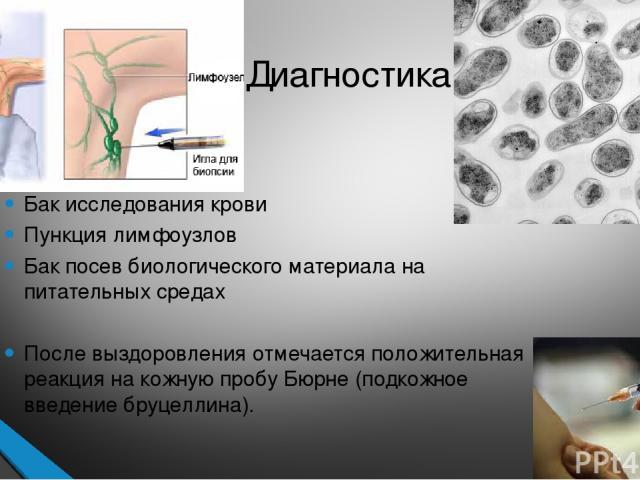 Диагностика Бак исследования крови Пункция лимфоузлов Бак посев биологического материала на питательных средах После выздоровления отмечается положительная реакция на кожную пробу Бюрне (подкожное введение бруцеллина).