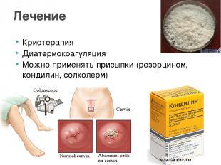 Криотерапия Диатермокоагуляция Можно применять присыпки (резорцином, кондилин, с