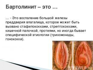 … - Это воспаление большой железы преддверия влагалища, которое может быть вызва
