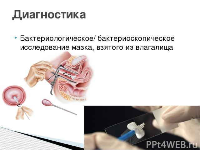 Бактериологическое/ бактериоскопическое исследование мазка, взятого из влагалища Диагностика