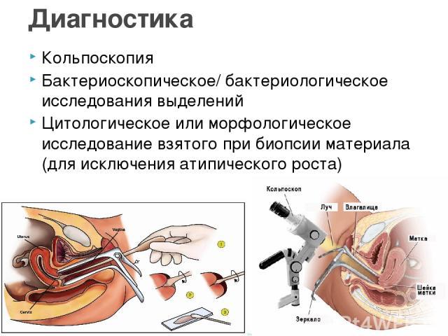 Кольпоскопия Бактериоскопическое/ бактериологическое исследования выделений Цитологическое или морфологическое исследование взятого при биопсии материала (для исключения атипического роста) Диагностика