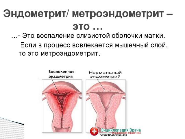 """Презентация на тему """"Воспалительные заболевания женских половых органов"""" - скачать презентации по Медицине"""