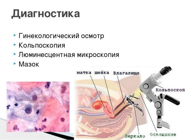 Гинекологический осмотр Кольпоскопия Люминесцентная микроскопия Мазок Диагностика