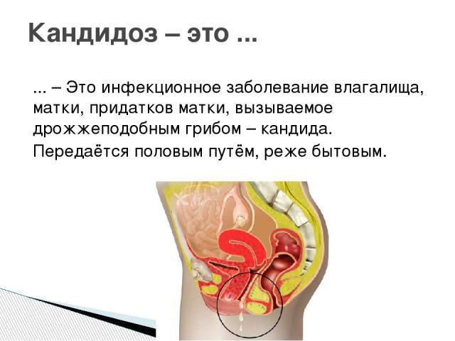... – Это инфекционное заболевание влагалища, матки, придатков матки, вызываемое дрожжеподобным грибом – кандида. Передаётся половым путём, реже бытовым. Кандидоз – это ...