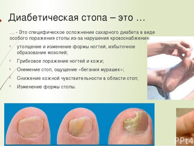 Диабетическая стопа – это … … - Это специфическое осложнение сахарного диабета в виде особого поражения стопы из-за нарушения кровоснабжения: утолщение и изменение формы ногтей, избыточное образование мозолей; Грибковое поражение ногтей и кожи; Онем…