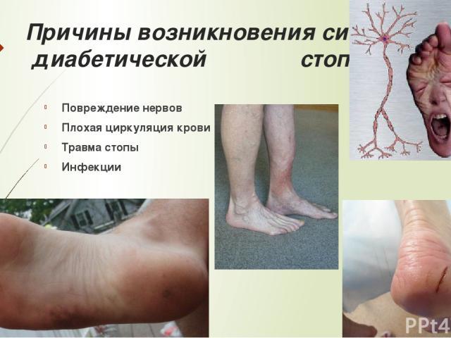 Причины возникновения синдрома диабетической стопы: Повреждение нервов Плохая циркуляция крови Травма стопы Инфекции