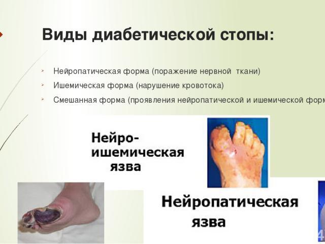 Виды диабетической стопы: Нейропатическая форма (поражение нервной ткани) Ишемическая форма (нарушение кровотока) Смешанная форма (проявления нейропатической и ишемической форм)
