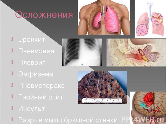 Осложнения Бронхит Пневмония Плеврит Эмфизема Пневмоторакс Гнойный отит Инсульт Разрыв мышц брюшной стенки
