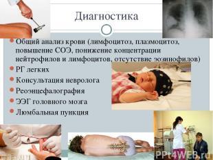 Диагностика Общий анализ крови (лимфоцитоз, плазмоцитоз, повышение СОЭ, понижени