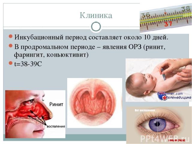 Клиника Инкубационный период составляет около 10 дней. В продромальном периоде – явления ОРЗ (ринит, фарингит, коньюктивит) t=38-39С