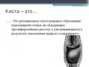 Киста – это… … - Это ретенционное опухолевидное образование влагалищной стенки,