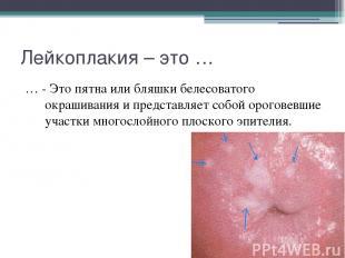 Лейкоплакия – это … … - Это пятна или бляшки белесоватого окрашивания и представ