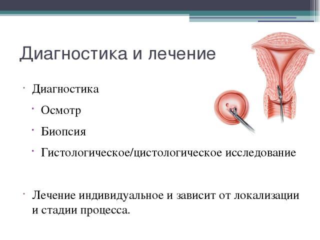 Диагностика и лечение Диагностика Осмотр Биопсия Гистологическое/цистологическое исследование Лечение индивидуальное и зависит от локализации и стадии процесса.