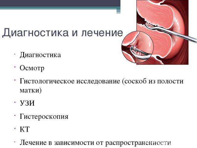 Диагностика и лечение Диагностика Осмотр Гистологическое исследование (соскоб из полости матки) УЗИ Гистероскопия КТ Лечение в зависимости от распространенности процесса, данных гистологического анализа, локализации метастазов.