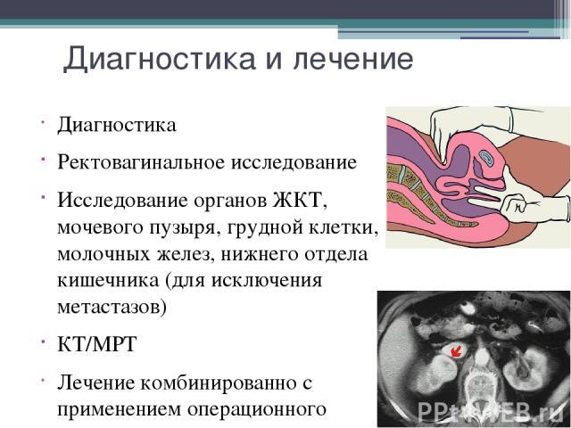 Диагностика и лечение Диагностика Ректовагинальное исследование Исследование органов ЖКТ, мочевого пузыря, грудной клетки, молочных желез, нижнего отдела кишечника (для исключения метастазов) КТ/МРТ Лечение комбинированно с применением операционного…