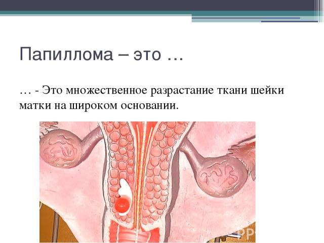 Папиллома – это … … - Это множественное разрастание ткани шейки матки на широком основании.