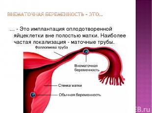 … - Это имплантация оплодотворенной яйцеклетки вне полостью матки. Наиболее част