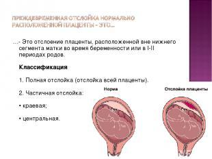 …- Это отслоение плаценты, расположенной вне нижнего сегмента матки во время бер