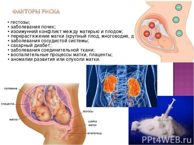 • гестозы; • заболевания почек; • изоимунний конфликт между матерью и плодом; • перерастяжение матки (крупный плод, многоводие, двойня); • заболевания сосудистой системы; • сахарный диабет; • заболевания соединительной ткани; • воспалительные процес…