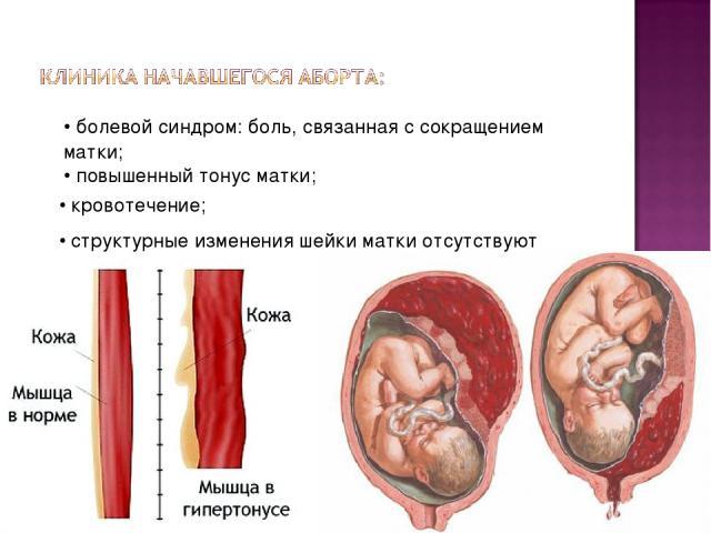 • болевой синдром: боль, связанная с сокращением матки; • повышенный тонус матки; • кровотечение; • структурные изменения шейки матки отсутствуют