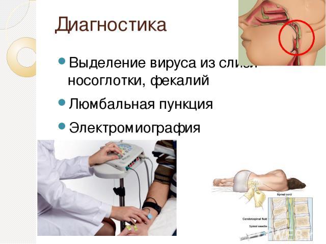 Диагностика Выделение вируса из слизи носоглотки, фекалий Люмбальная пункция Электромиография