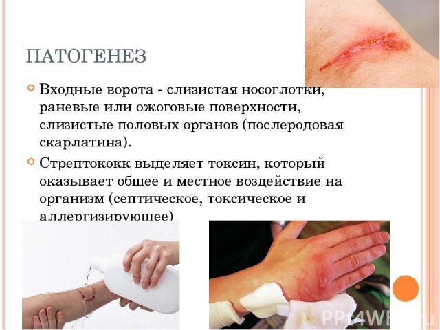 ПАТОГЕНЕЗ Входные ворота - слизистая носоглотки, раневые или ожоговые поверхности, слизистые половых органов (послеродовая скарлатина). Стрептококк выделяет токсин, который оказывает общее и местное воздействие на организм (септическое, токсическое …