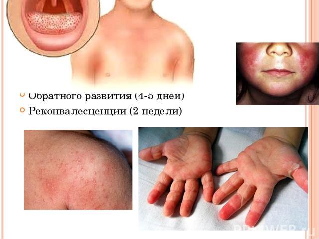 ПЕРИОДЫ БОЛЕЗНИ Инкубационный (1-7 дней) Разгара и высыпания (3-4 дня) Обратного развития (4-5 дней) Реконвалесценции (2 недели)