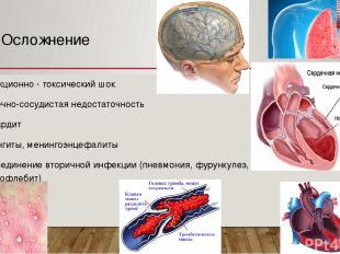 Осложнение Инфекционно - токсический шок Сердечно-сосудистая недостаточность Мио