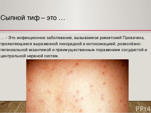 Сыпной тиф – это … … - Это инфекционное заболевание, вызываемое риккетсией Провачека, проявляющееся выраженной лихорадкой и интоксикацией, розеолёзно-петехиальной экзантемой и преимущественным поражением сосудистой и центральной нервной систем.